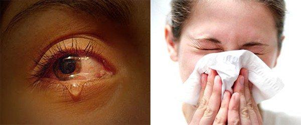 слезотечение, слизистое отделяемое из носа
