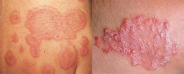 симптомы острой формы зудящего дерматита