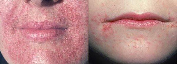 проявление периорального дерматита