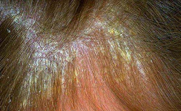 проявление себорейного дерматита головы