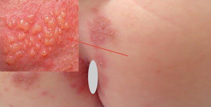 Фото дерматита на попе у взрослого thumbnail
