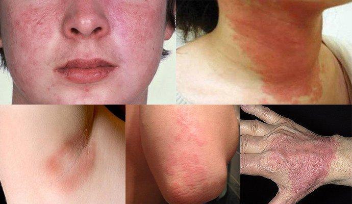 проявление атопического дерматита на частях тела