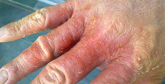 экзематозный дерматит на руках