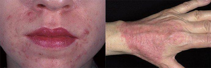хронический аллергический дерматит