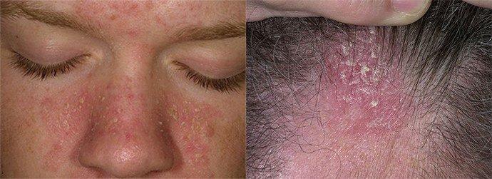 хронический себорейный дерматит