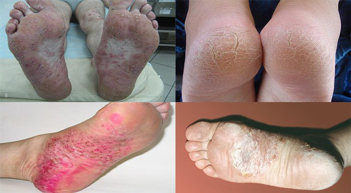 псориаз на ступнях ног