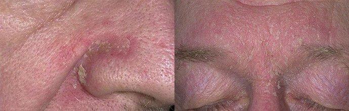 проявление себорейного дерматита на лице