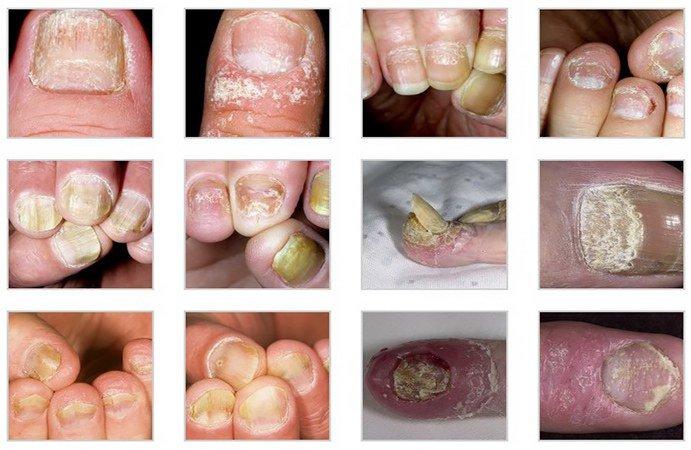 симптомы псориаза ногтей