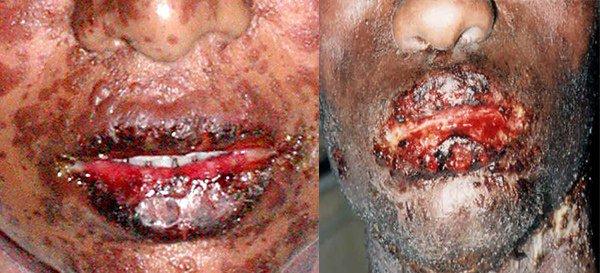проявление синдрома Лайелла в области рта