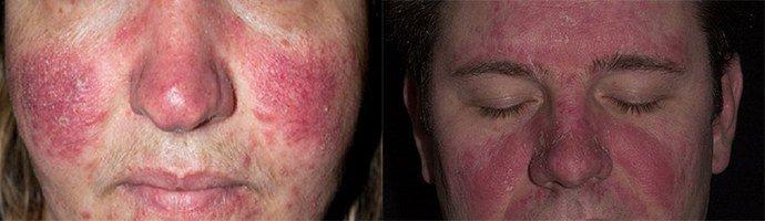 От себорейного дерматита на лице что поможет thumbnail