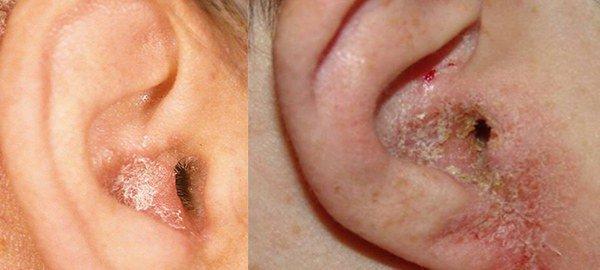проявление ушного дерматита