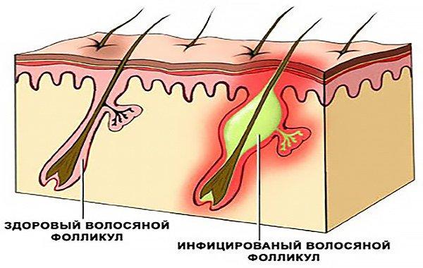 здоровый и инфицированный волосяной фолликул