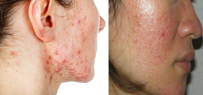 жирная себорея на лице