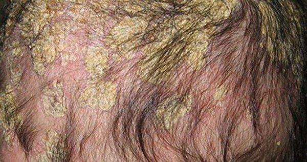 себорейный дерматит жирной формы