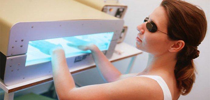 лечение псориаза ультрафиолетовыми лучами