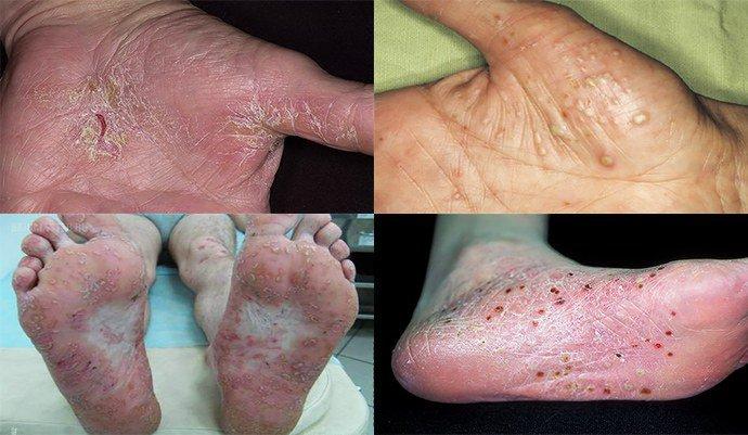 Пустулезный псориаз (фото): лечение ладоней и подошв