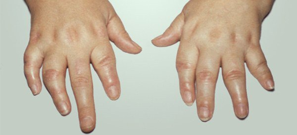 псориатический ревматоидный артрит