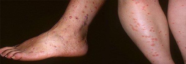 начальная стадия псориаза на ногах