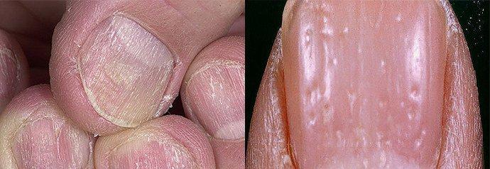 псориаз ногтей начальная стадия