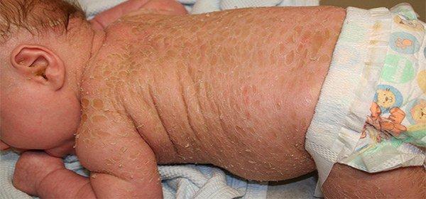 начальная стадия псориаза у детей