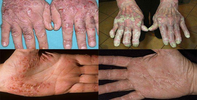 основные симптомы псориаза на руках