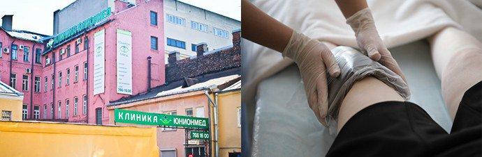 лечение в клинике «ЮнионМед»