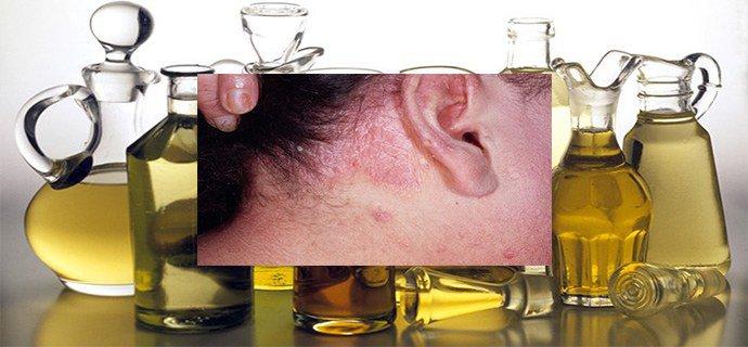 Масло чайного дерева для проблемной кожи лица