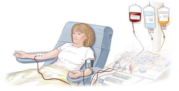 Очищение крови при псориазе. Правильное очищение организма при псориазе