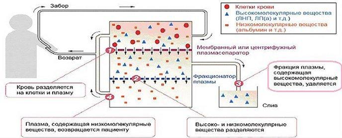 схема проведения плазмафереза