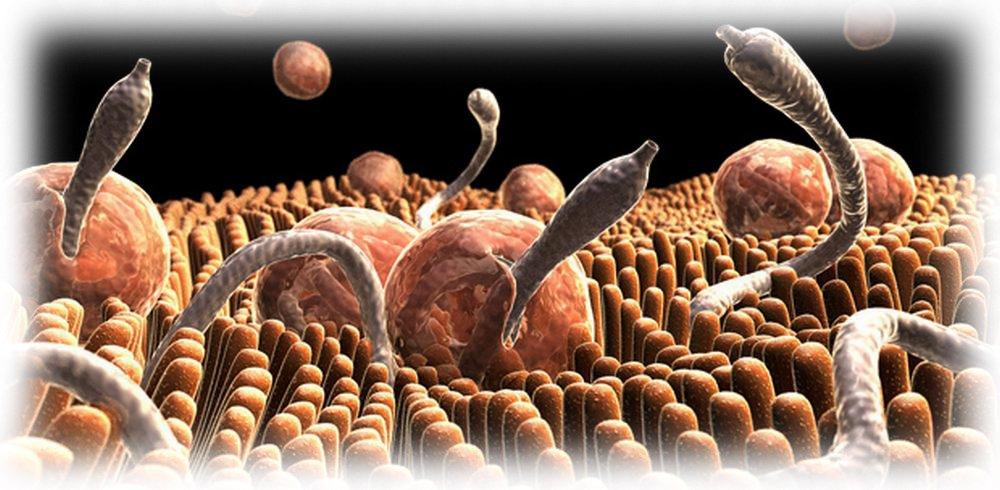 Синдром Лефллера и гельмитоз