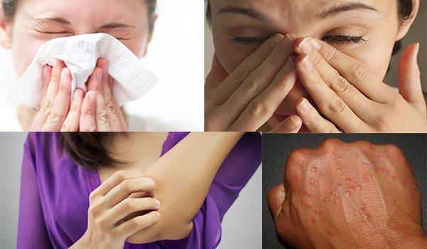 характерные симптомы аллергии