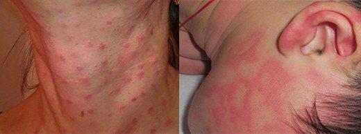 Сыпь при глистах: какие могут быть высыпания на коже