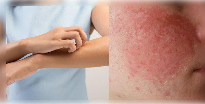кожный зуд и гиперемия