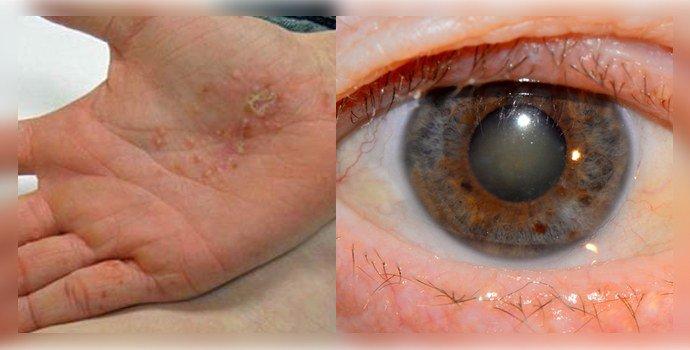 экзема и катаракта
