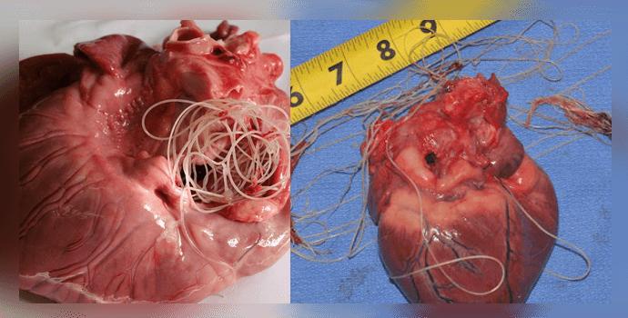 паразиты в сердце человека
