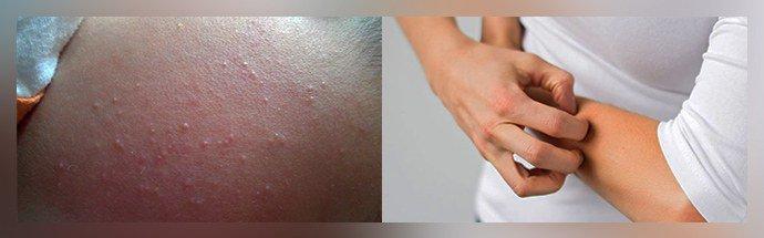 Появление аллергии