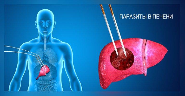 паразиты в печени у человека
