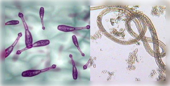 эхинококкоз и капилляриоз
