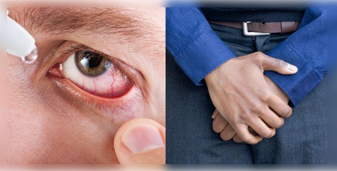 конъюнктивит и боли в уретре