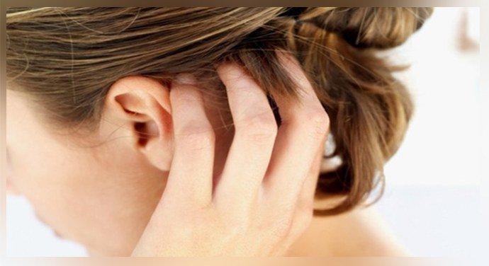 Зуд на голове