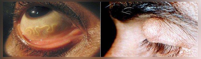 Цистицеркоз глаз