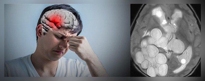 Что такое эхинококкоз: симптомы болезни, меры предосторожности