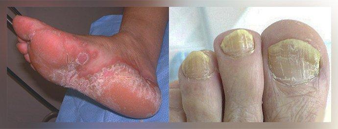 Грибковые заболевания