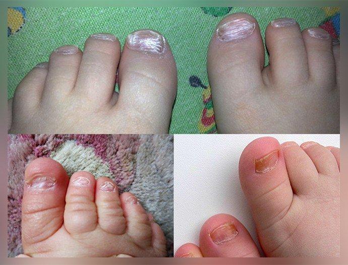 Грибок ногтей на ногах у детей