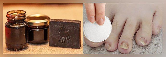 Применение мыла при онихомикозе с березовым дегтем