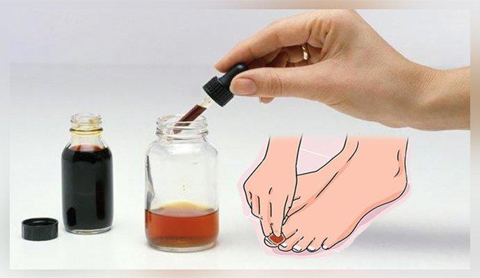 Лечение грибка ногтей йодом и уксусом