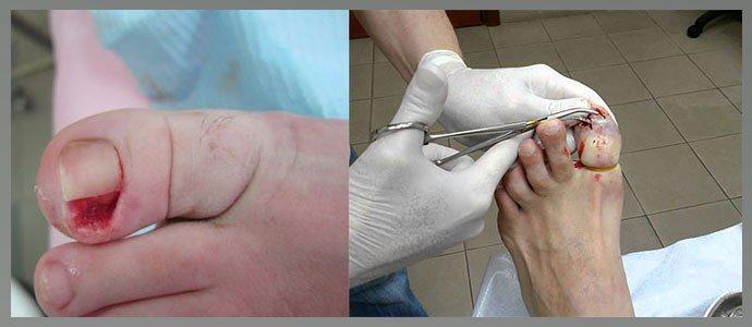 Удаление ногтя хирургическим путем