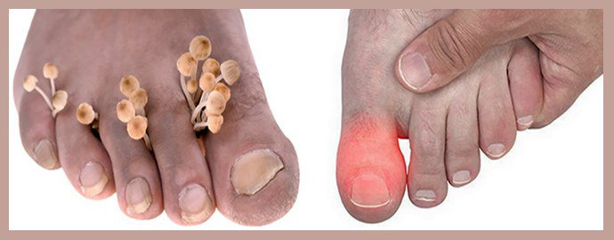 Боль ногтя при грибке