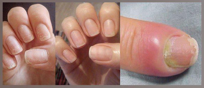 Гиперемия ногтевого валика, расслоение структуры ногтя