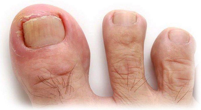 Грибок на большом пальце ноги
